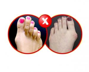 Foot Fix Pro - Srbija - gde kupiti - u apotekama