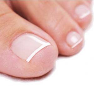 Kako se rešiti neprijatnog mirisa stopala