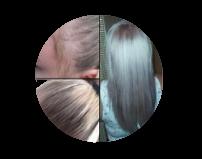 Kossalin Šampon - rezultati - nezeljeni efekti