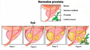 ProDrops - nezeljeni efekti - rezultati